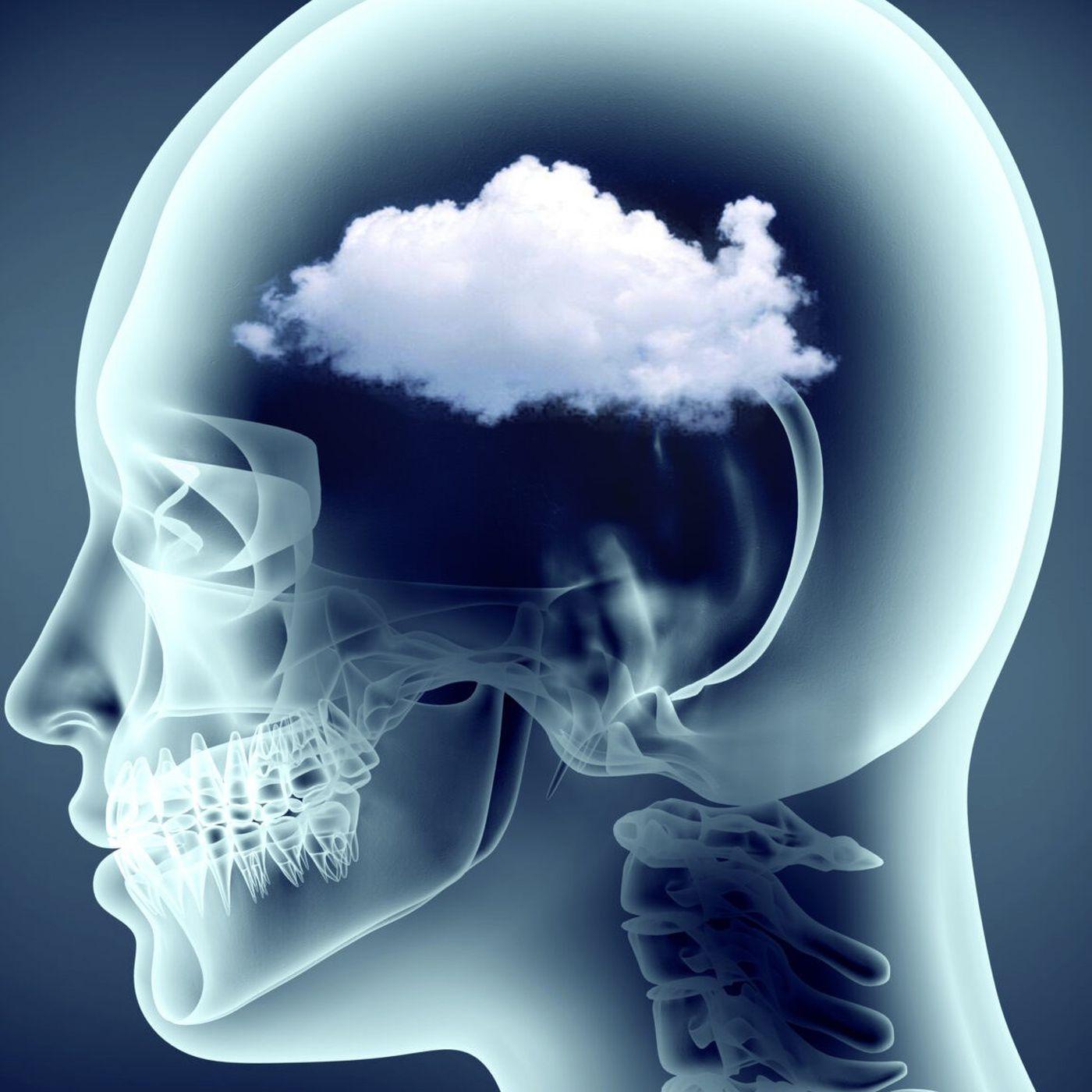 Beyin Sisi Nedir? COVID-19 Kaynaklı da Olabilen Beyin Sisi ile Nasıl Başa Çıkabilirsiniz?