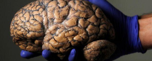 Beyinle İlgili 10 Yanlış Bilgi ve Bunların Gerçekleri