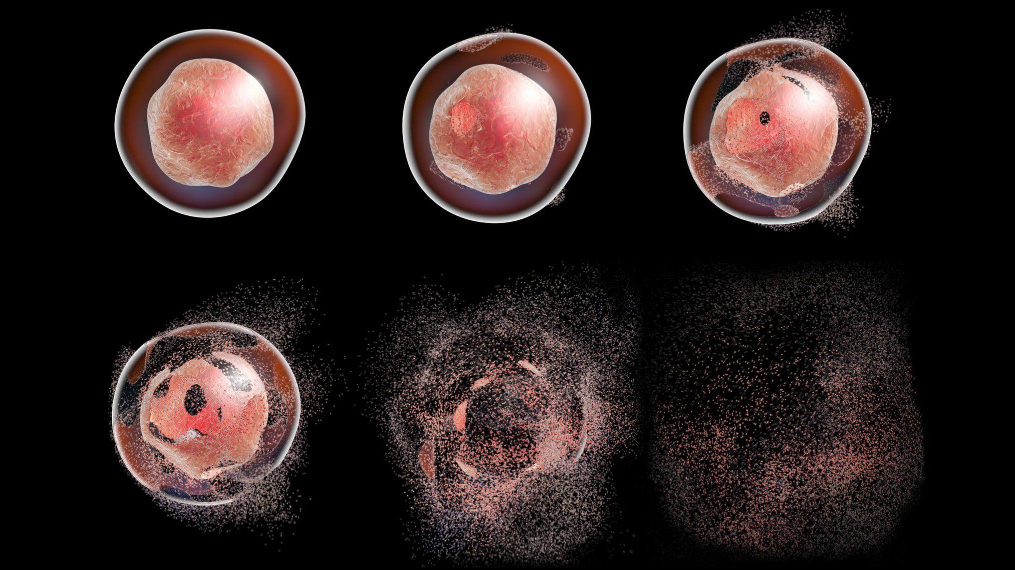 Hücre Ölümü Mekanizmaları: Programlı Hücre Ölümü (Apoptosis, Apoptoz) Nedir? Hücre/Doku Ölümü (Nekroz)
