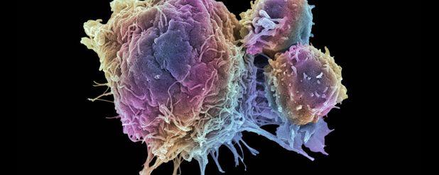 Kanser Nedir? Kanserin Evrimi Üzerine...